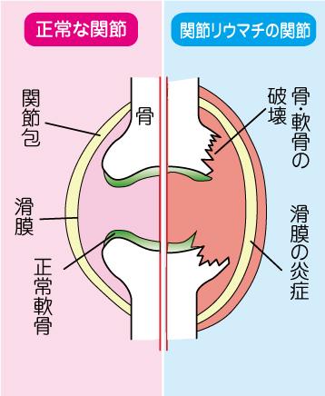 リウマチと正常な関節